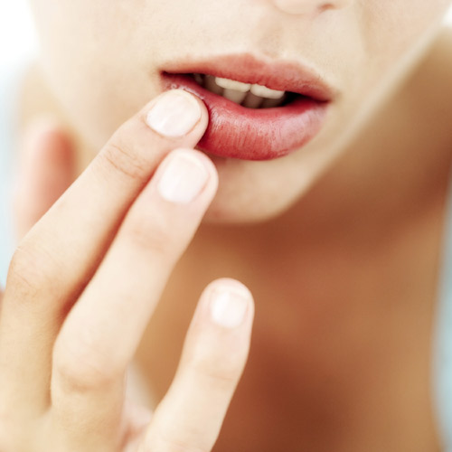 aliviar llagas en la boca